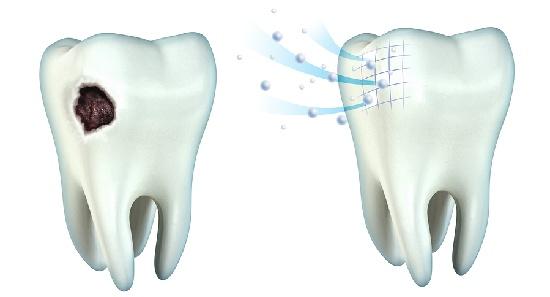 Rimineralizzazione del Dente