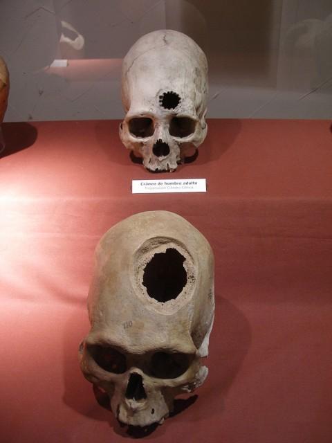 Esempiodal 15° esimo secolo di neurochirurgianella Inca culture.