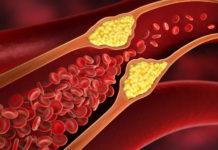 Arterie ostruite