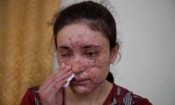 Lamiya Aji Bashar ha perso l'occhio destro e il suo viso è segnato dalla pelle corrosa della mina esplosa mentre scappava
