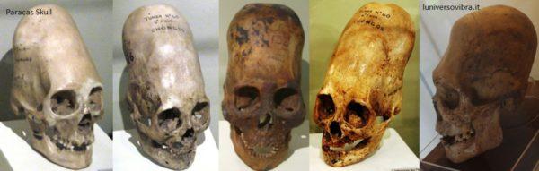 Paracas Skull