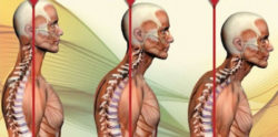 Postura della testa e ansia si influenzano a vicenda
