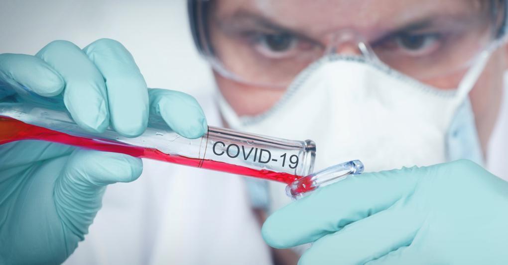 Cura anti-Covid, l'ultimo farmaco viene dal Giappone: l'Aifa ...
