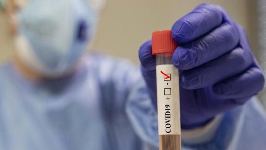 I tamponi non danno certezza: spuntano casi simil Covid di pazienti contagiati ma con esame negativo - La Stampa